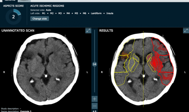 AI technology speeds up stroke care and reduces costs