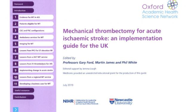 'How-to' guide launched to speed up spread of 'game-changing' stroke treatment