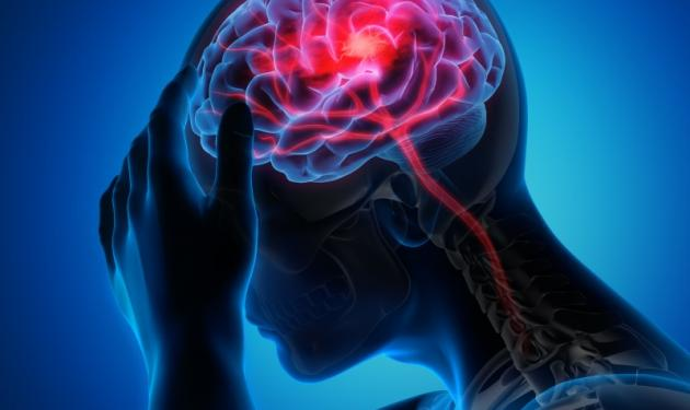 Consortium including Oxford AHSN and POCKiT Diagnostics secures over £700,000 in grant funding to improve diagnosis of stroke within the NHS in England