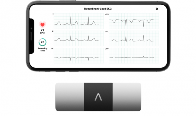 Mental health trust pilots remote ECGs to protect vulnerable patients during the pandemic